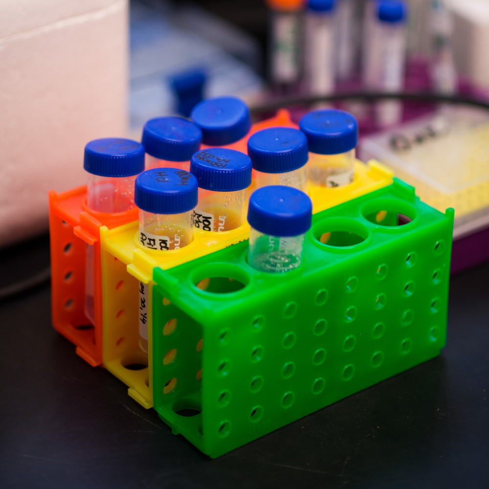 Three rows of test tube holders, one green, one yellow and one orange, holding a total of eight tubes